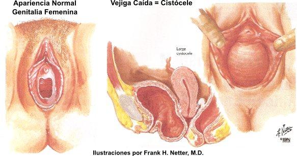 Infecciones Urinarias en la Mujer Urinaria en la Mujer es